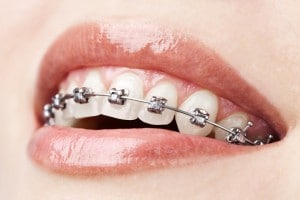 Metal Braces Embrace Orthodontics