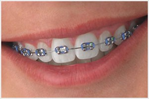 metal-brackets Embrace Orthodontics