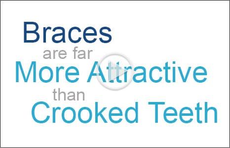 Braces More Attractive Embrace Orthodontics in Cibolo, TX