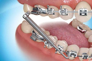 Forsus-Appliance-embrace-orthodontics