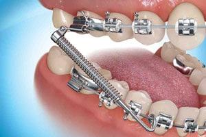 Types Of Appliances Cibolo Tx Embrace Orthodontics