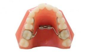 RPE Embrace Orthodontics