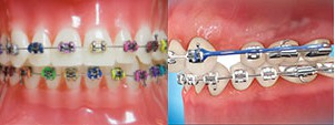o-rings-power-chains-embrace-ortho